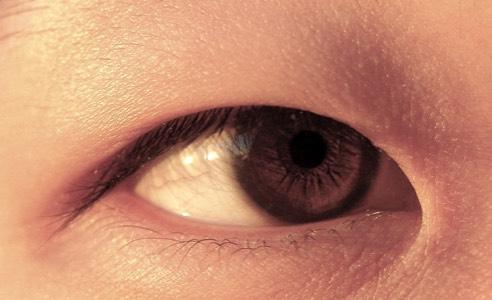 Double Eyelid Surgery UK - Asian Blepharoplasty - Mr David
