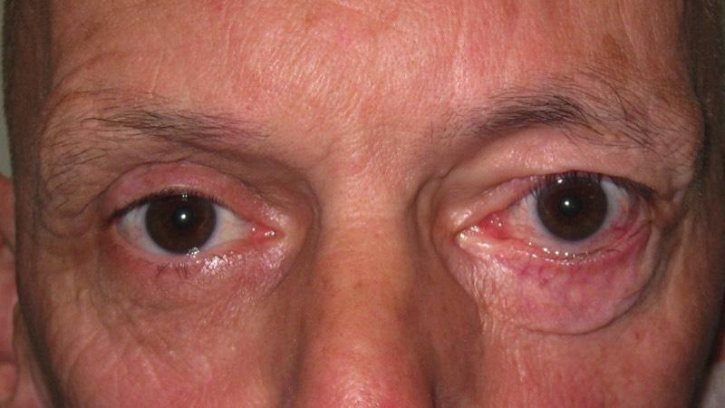 Facial palsy rehabilitation, ar book black beauty