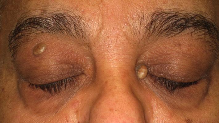 Treatment for lump inside eyelid, chalazion, eyelid cyst   Mr David