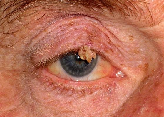 Treatment For Lump Inside Eyelid Chalazion Eyelid Cyst Mr