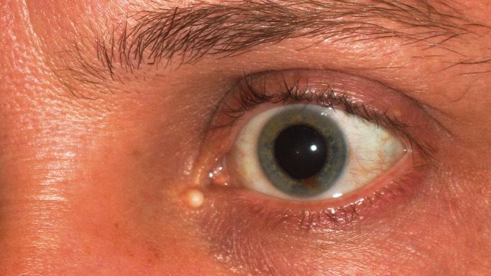 Treatment for lump inside eyelid, chalazion, eyelid cyst